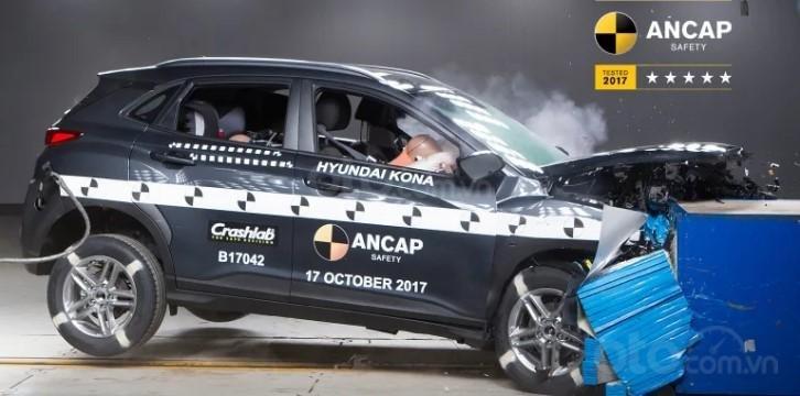 Hyundai phát triển công nghệ AI chẩn đoán tổn thương của người lái..