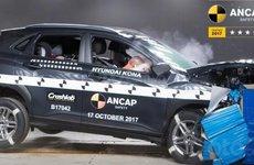 Hyundai phát triển công nghệ AI chẩn đoán tổn thương của người lái